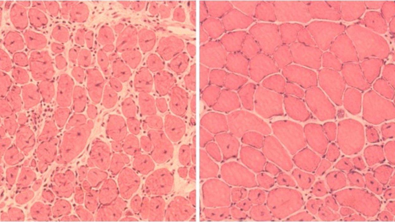 yaşlanan hücreleri gençleştirmek